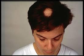 AlopeciaAretha_Manwithballspot